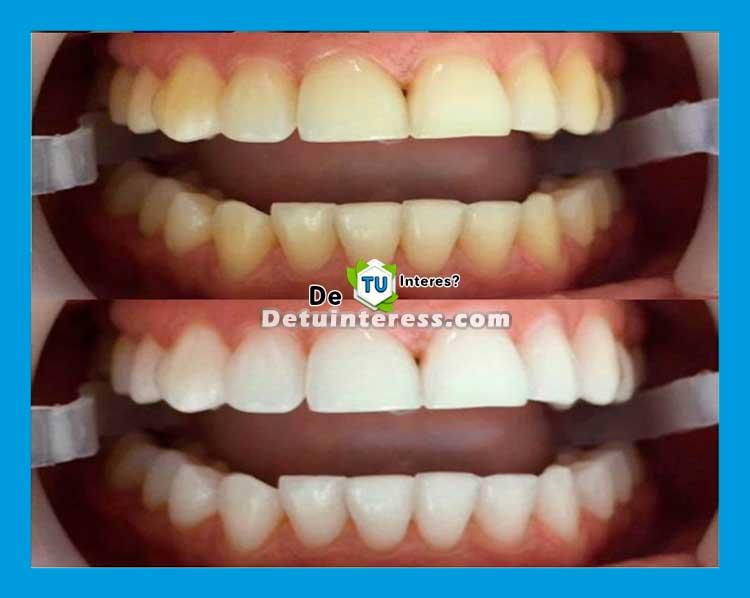 blanquear dientes de forma natural